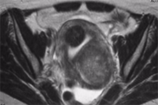 Fibroid MRI Axial (1)