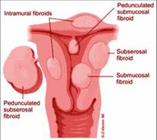 Uterus 1 (1)